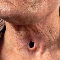 Přítelkyně masáž porno